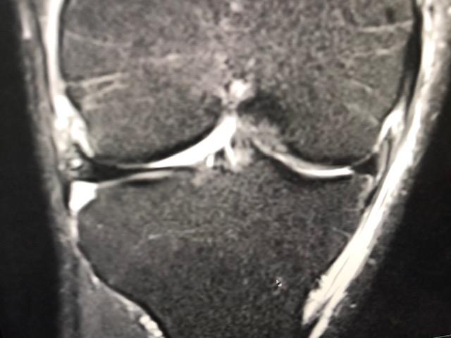Kommedico Dr. Mengel MRT-Bild Meniskus-Abriss an der Kapsel